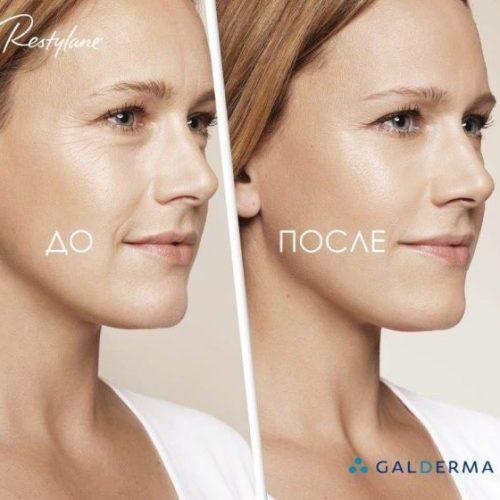 Биоревитализация. Увлажнение кожи препаратами Restylane
