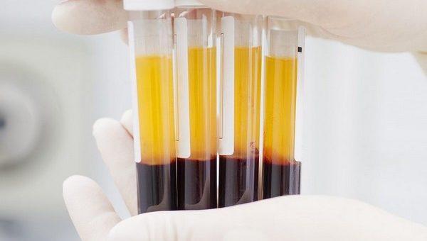 Интимная плазмотерапия