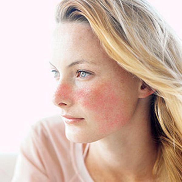Программа RS2 от Pevonia для чувствительной кожи и борьбы с куперозом