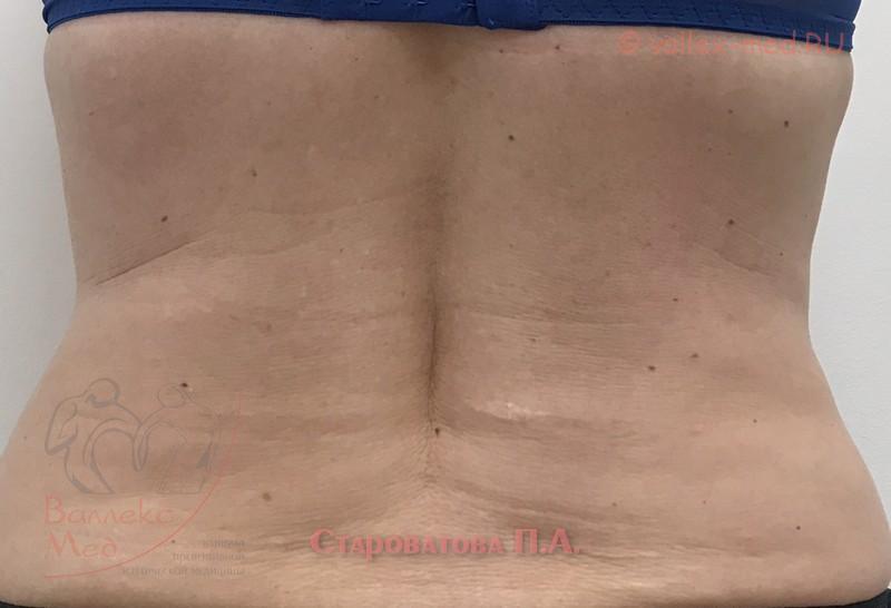 Пациент Староватовой П.А. после процедуры криолиполиза