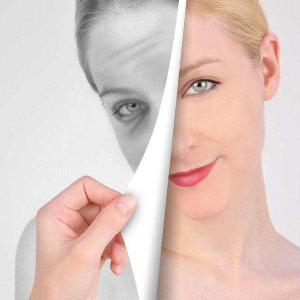 Фотоомоложение лица и кожи (Lumecca)