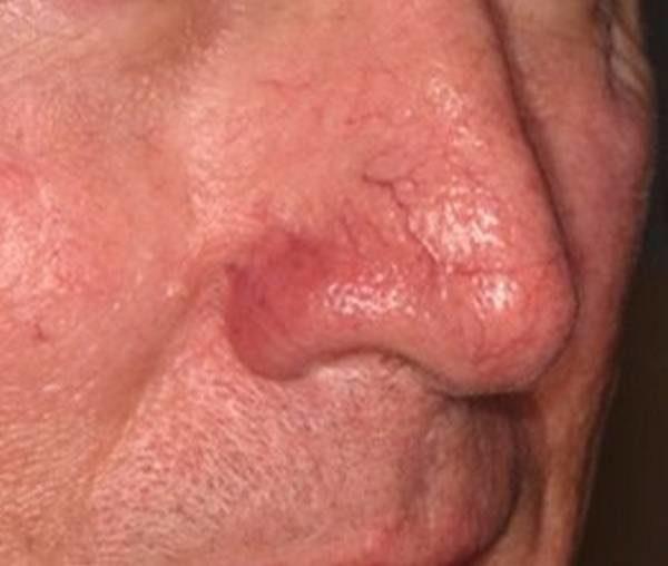 Фото до применения Lumecca (Сокращение количества вен на носу)