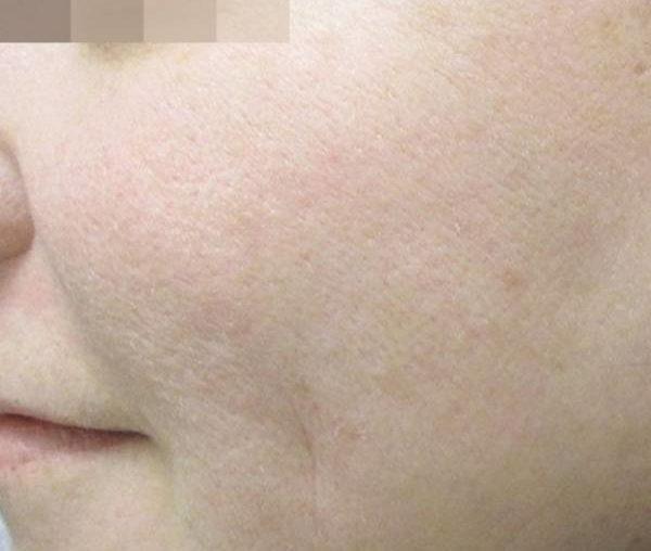 Фото до применения Lumecca (Удаление коричневых пятен)