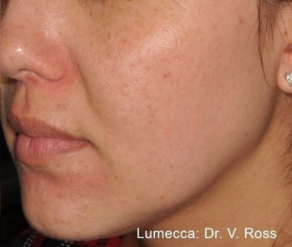 Фото до применения  Lumecca (Сокращение количества веснушек)
